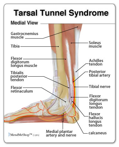 Tarsal Tunnel Syndromecomplete Health Fitness
